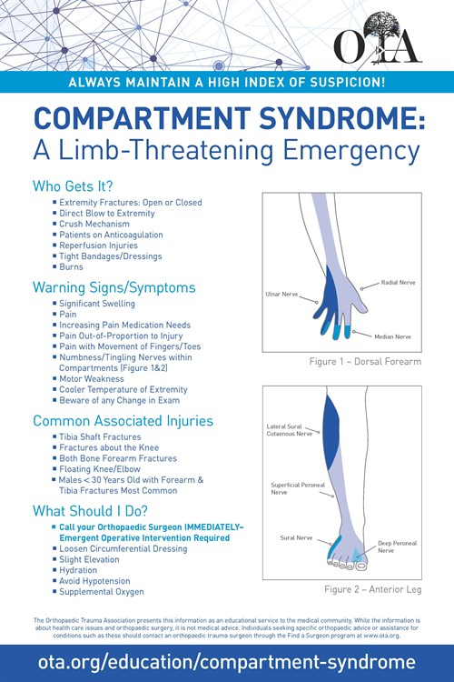 OTA Poster on Compartment Syndrome