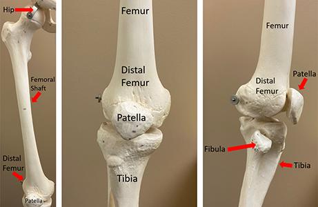 Fractura de Femur | Ortopedia pe Înţelesul Tuturor