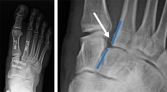 lisfranc injury causes durere la glezne și umflare