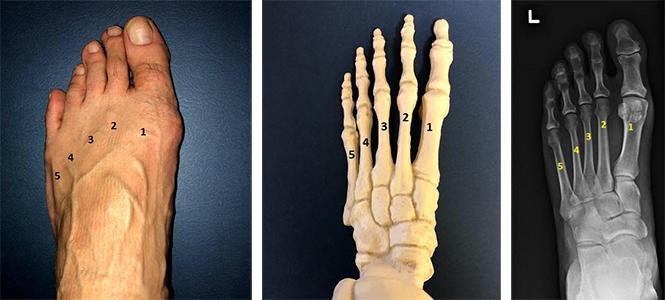 Metatarsal Fracture Orthopaedic Trauma Association Ota