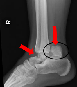 fractura talus)